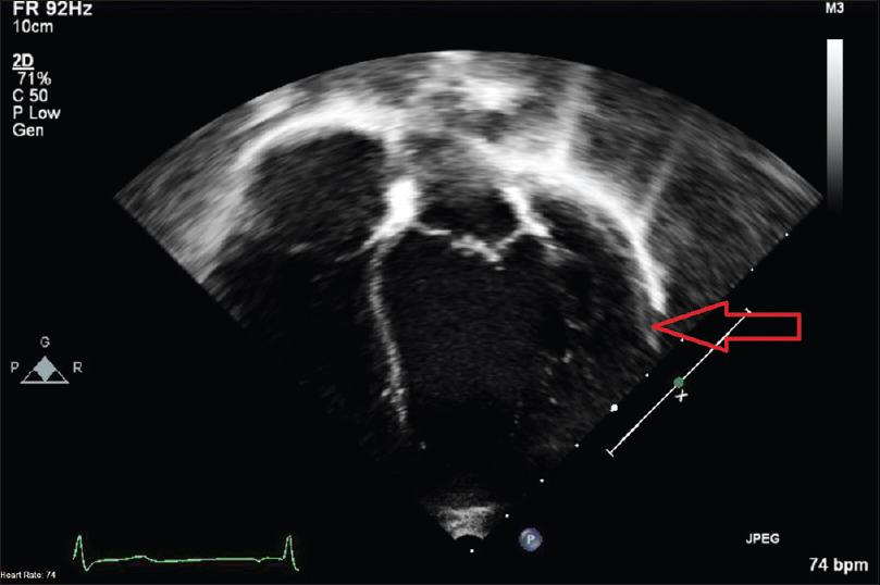 Figure 5: Apical 4 chamber view echocardiogram performed at 6 years of age showing persistent large submitral left ventricular aneurysm marked by red arrow