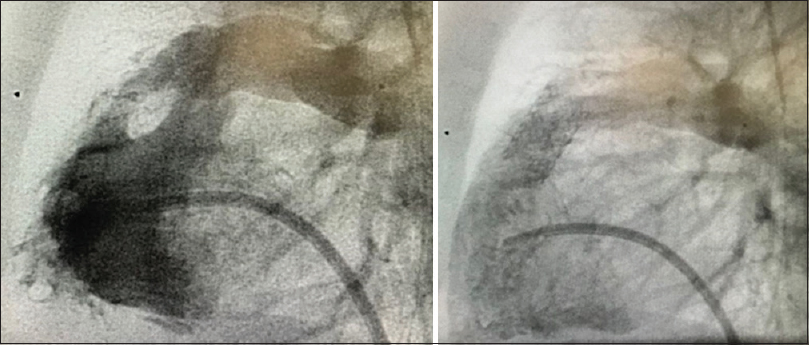 Figure 2: One of our patients with right ventricular outflow tract stenting