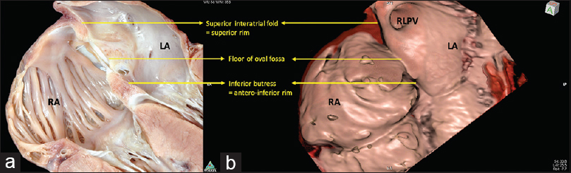 Figure 1: An image obtained using virtual cardiac dissection (a) with one of the heart specimens sectioned in a comparable view (b). Both panels clearly demonstrate that the superior rim of the oval fossa is no more than the superior interatrial fold between the connections of the superior caval vein to the right atrium, and the right upper pulmonary vein to the left atrium. The oval fossa lies between this superior rim and the anteroinferior buttress, which anchors the fossa to the atrioventricular junction. ICV: Inferior caval vein, LA: Left atrium, RA: Right atrium, RAA: Right atrial appendage, RLPV: Right lower pulmonary vein, RPA: Right pulmonary artery