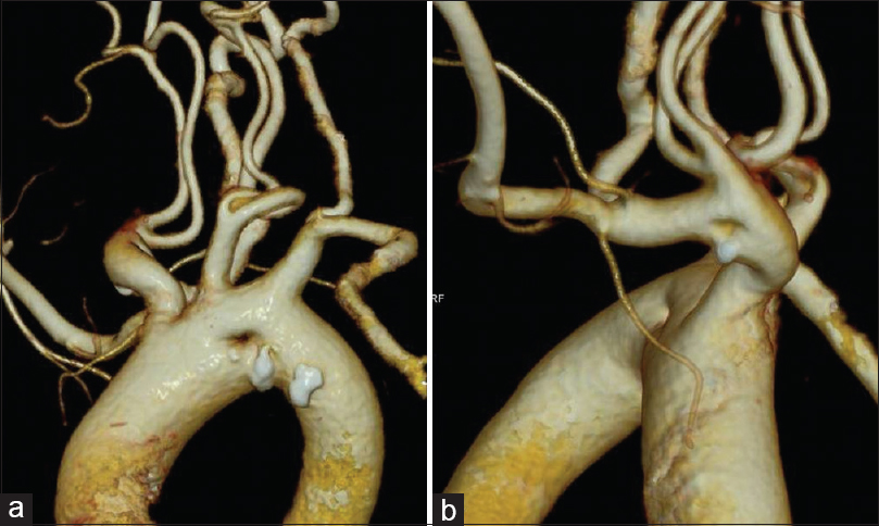 "Figure 1: (a and b) Volume-rendered images of the computed tomography angiography showing the ""double-lumen"" appearance of the aortic arch (a) and brachiocephalic artery with unusually low bifurcation of both common carotid arteries (b)"