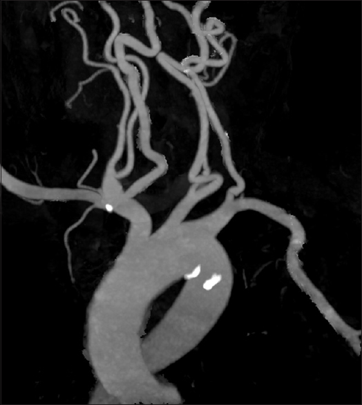 Figure 2: Maximum intensity projection rendering of the computed tomography angiography showing calcifications in both vascular channels
