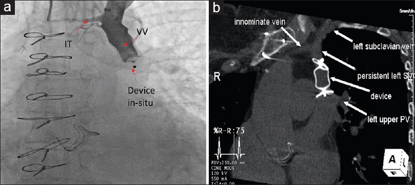 Figure 2: Transcatheter intervention of partial anomalous pulmonary vein connection with dual drainage. (a) Vertical vein angiogram shows Amplatzer Vascular Plug II device in good position with no significant residual flow into the left atrium. (b) Computed tomography scan 1-year postdevice occlusion shows the device in good position and redirecting pulmonary venous flow to the left atrium