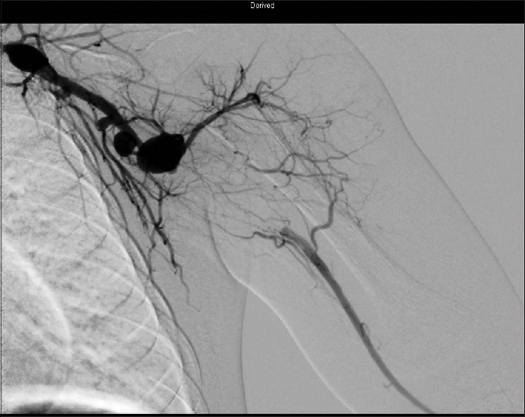 Figure 1: Angiogram of the left upper extremity reveals multiple aneurysms of the left axillary artery and a thrombosed aneurysm at the left axillary–brachial junction. The distal brachial artery remains patent receiving flow from small collaterals
