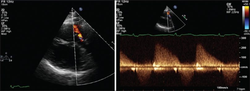 Figure 1: Parasternal short axis view (left) and the Doppler interrogation (right) of the native pulmonary tract demonstrating the moderate-to-severe regurgitation by color echocardiography