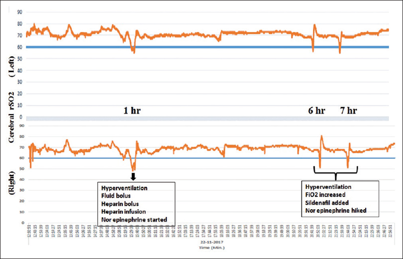 Figure 1: Regional cerebral oxygen saturation records by near-infrared spectroscopy during first 12 h postoperative period. There was fall in regional cerebral oxygen saturation on both sides at 1, 6, and 7 h postoperative period. Interventions done during fall in regional cerebral oxygen saturation are given in the boxes