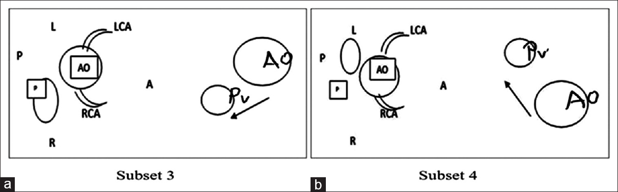 Figure 2: (a and b) Representation of operative modifications in patients with Double outlet right ventricle (DORV) ventricular septal defect Pulmonary stenosis (PS). A: Anterior, AO: Aorta, L: Left, LCA: Left circumflex artery, P: Posterior, R: Right, RCA: Right circumflex artery, PV: Pulmonary value