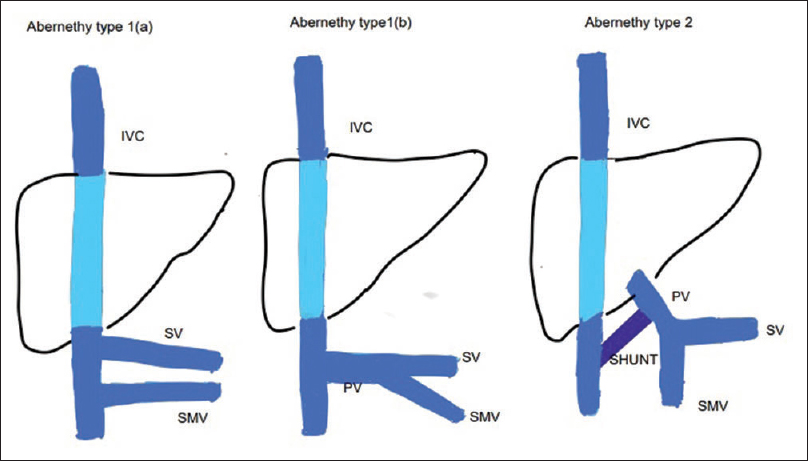 Figure 4: Types of Abernethy malformation. Type 1a – splenic vein and superior mesenteric vein drain separately into inferior vena cava. Type 1b – splenic vein and superior mesenteric vein form a portal vein that drains into inferior vena cava. Type 2 – Shunt between the portal vein and inferior vena cava