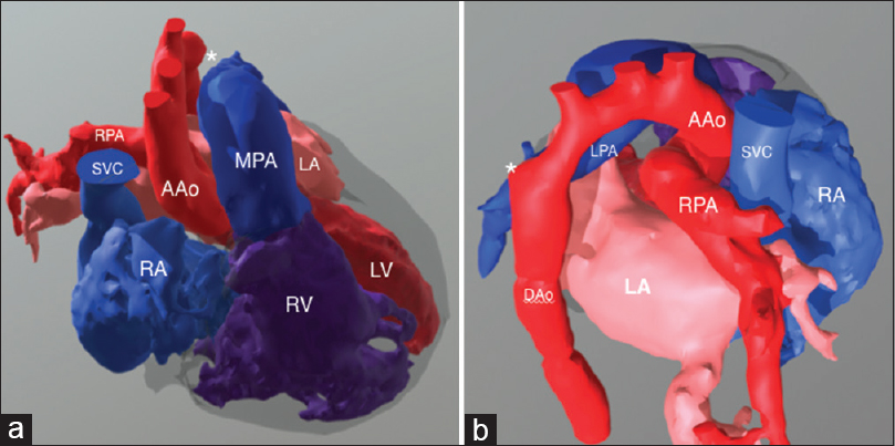 "Figure 3: Software-aided anatomical segmentation of the heart and great vessels based on postiodinate contrast computed tomography images shows three-dimensional anatomy of Case number 3: a) disconnected branch pulmonary arteries with the right pulmonary artery originating from the mid-ascending aorta (in red) and left pulmonary artery from the main pulmonary artery (in blue); b) the left-sided aortic arch isthmus is enlarged probably in keeping with ""ductal ampulla"" (asterisk) due to left ductus arteriosus ligament in this position"