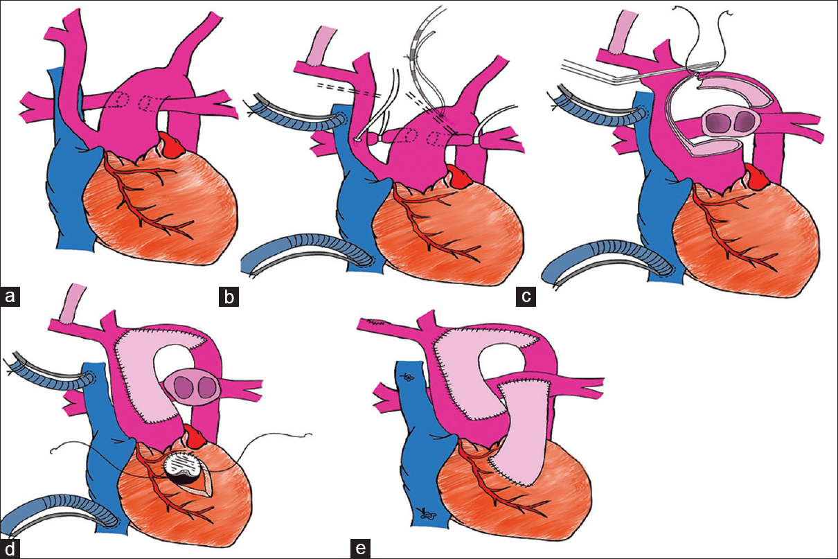Figure 4: Cartoon showing steps of surgical repair