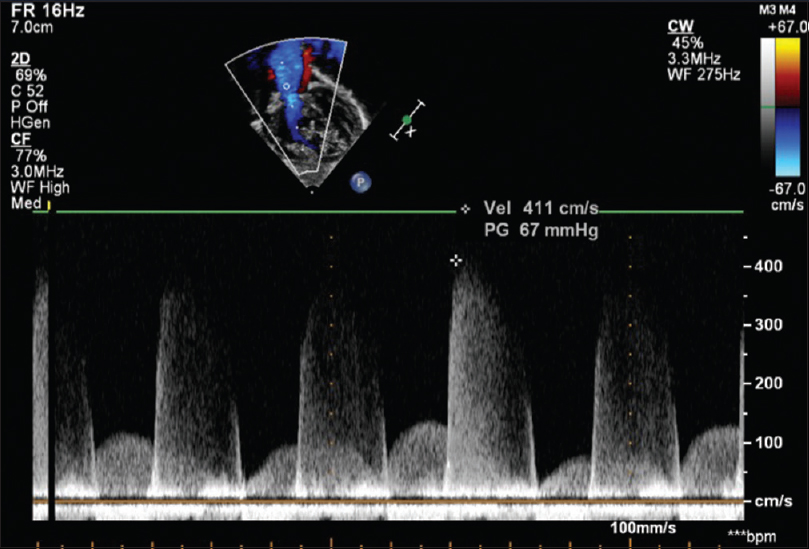 Figure 3: Continuous wave Doppler recording the high-velocity pulmonary regurgitation related to high pulmonary artery pressure