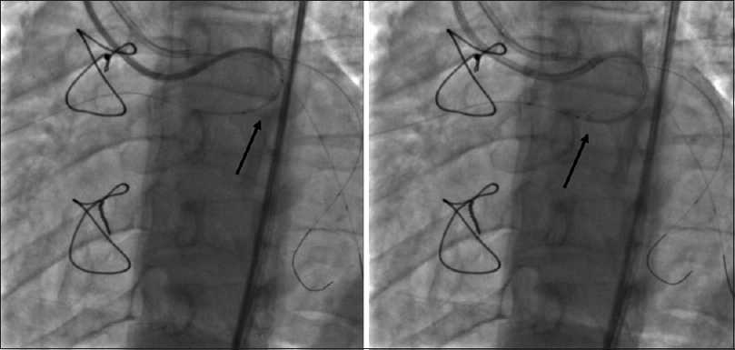 "Figure 3: Triple coaxial catheter system (modified ""mother–child technique"") advancing along the coronary artery fistula (arrow)"