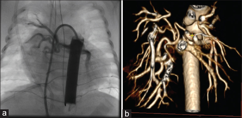 Figure 1: (a) Fluoroscopy during cardiac catheterization demonstrating a large major aortopulmonary collateral artery originating from the descending aorta and supplying pulmonary segments of both the right and left lungs. (b) Three-dimensional reconstruction from computed tomography angiography of the same patient showing several major aortopulmonary collateral arteries originating from descending aorta to partially supply both lungs. Three-dimensional capacity of computed tomography angiography avoids superimposition of major aortopulmonary collateral arteries as seen on two-dimensional catheterization