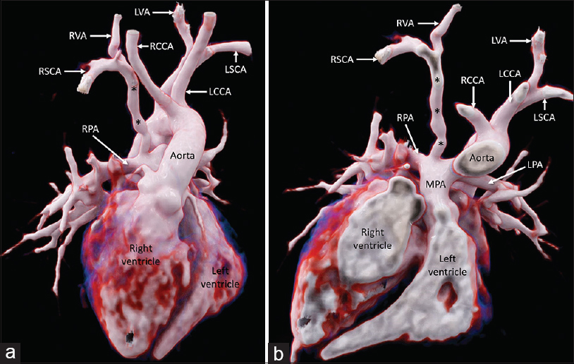 Figure 1: Cinematic volume-rendered images reveal the origin of the right subclavian artery from the proximal part of the right pulmonary artery via a patent right ductus arteriosus (*). The aorta and main pulmonary artery are seen arising from the right and left ventricle, respectively. RCCA: Right common carotid artery; LCCA: Left common carotid artery; LSCA: Left subclavian artery; RVA: Right vertebral artery; LVA: Left vertebral artery; LPA: Left pulmonary artery
