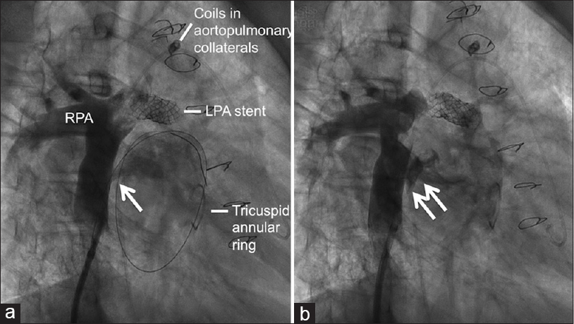 Figure 1: Conduit angiogram in the right anterior oblique view (a) showing fenestration in Fontan circuit and a guidewire placed through this fenestration (single arrow). Previously deployed coils in aortopulmonary collaterals, left pulmonary artery stent, and surgical tricuspid annuloplasty ring are seen. The fenestration was restricted (b) with atrial flow regulator device (double arrow). RPA: Right pulmonary artery