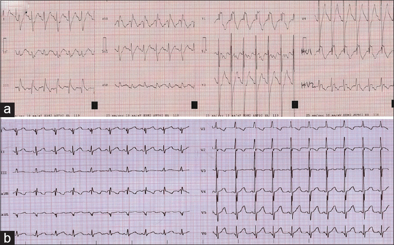 Figure 1: Electrocardiogram on admission and after normalization of alterations for case 2. (a) Electrocardiogram showed sinus rhythm with prolonged PR interval (174 ms), complete right bundle branch block (QRS of 174 ms), and prolonged QTc interval (518 ms). (b) Electrocardiogram after flecainide removal