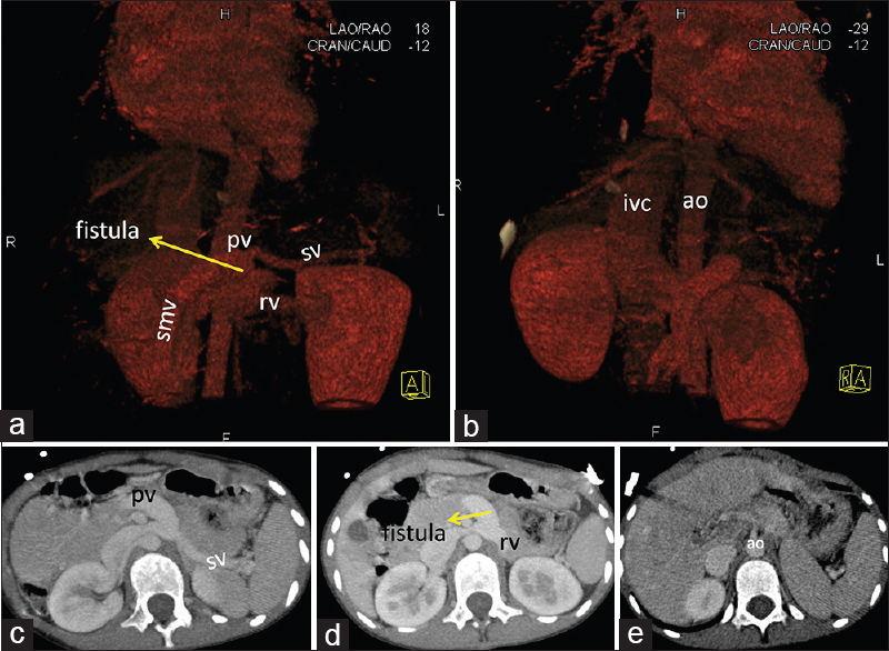 Figure 2: Reconstructed volume rendered technique images (panel a and b) and contrast enhanced computed tomography images in axial section at the level of splenoportal axis (panel c-e) showing fistulous communication between portal vein and left renal vein. No evidence of intrahepatic portal venous radicles seen. SV: Splenic vein, Ao: Aorta, SMV: Superior mesenteric vein, IVC: Inferior vena cava