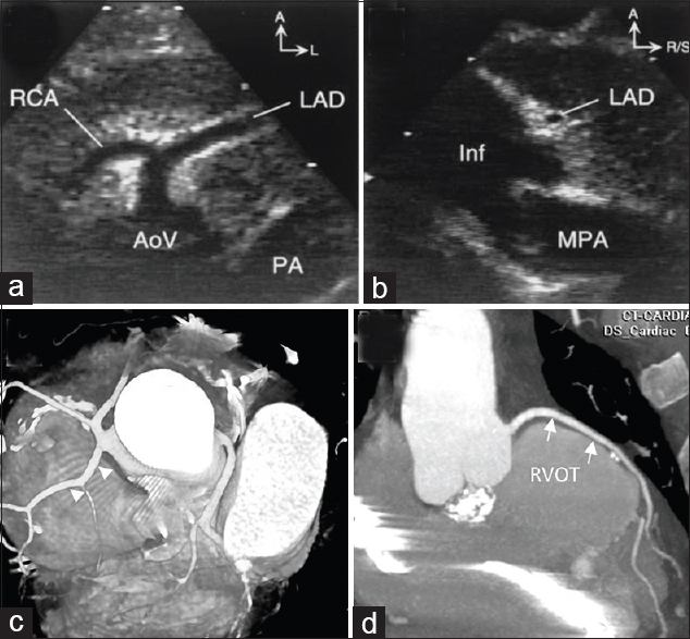 Figure 4: Origin of the LAD from the RCA crossing the right ventricular outflow tract. (a) High parasternal short-axis view. The enlarged proximal RCA supplies the LAD. (b) Leftward angled parasternal long-axis view profiling the right ventricular outflow tract (infundibulum) free wall. The LAD is seen in cross-section approximately 7 mm below the pulmonary valve<sup>[25]</sup> and 52-year-old male, status post TOF repair. (c) Anomalous origin of the LAD from the right coronary cusp (arrowhead). (d) The anomalous LAD courses anterior to the RVOT (arrows). (reproduced with permission from Kapur S, Aeron G, Vojta CN. Pictorial review of coronary anomalies in Tetralogy of Fallot. J Cardiovasc Comput Tomogr. 2015 Nov-Dec; 9(6):593-6.). A: Anterior, AoV: Aortic valve, Inf: Infundibulum, L: Left, LAD: Left anterior descending coronary artery, MPA: Main pulmonary artery, RCA: Right coronary artery, R/S: Right/superior, RVOT: Right ventricular outflow tract
